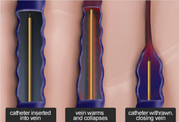 Radiofrequency Venous Ablation(RFA)