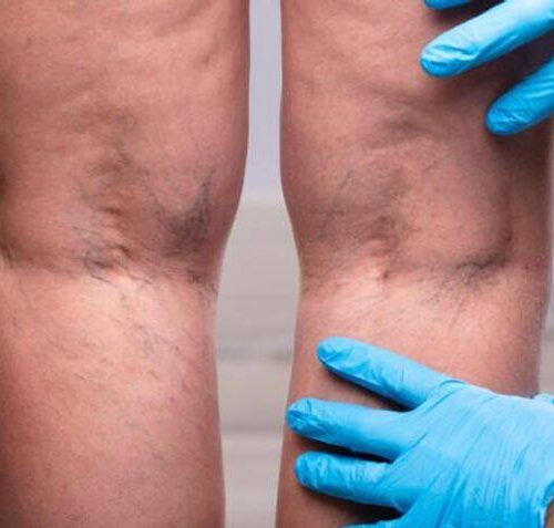 How To Get Rid Of Varicose Veins With Radiofrequency Venous Ablation
