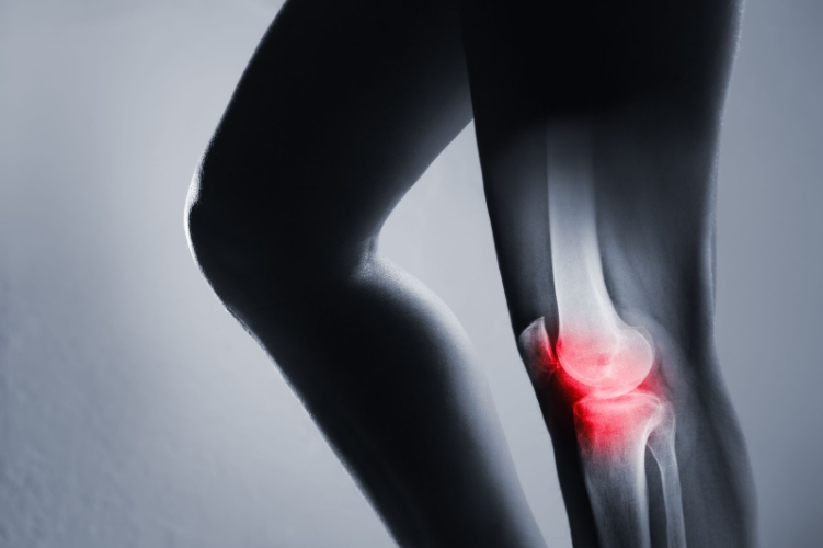 Why osteoarthritis causes severe pain